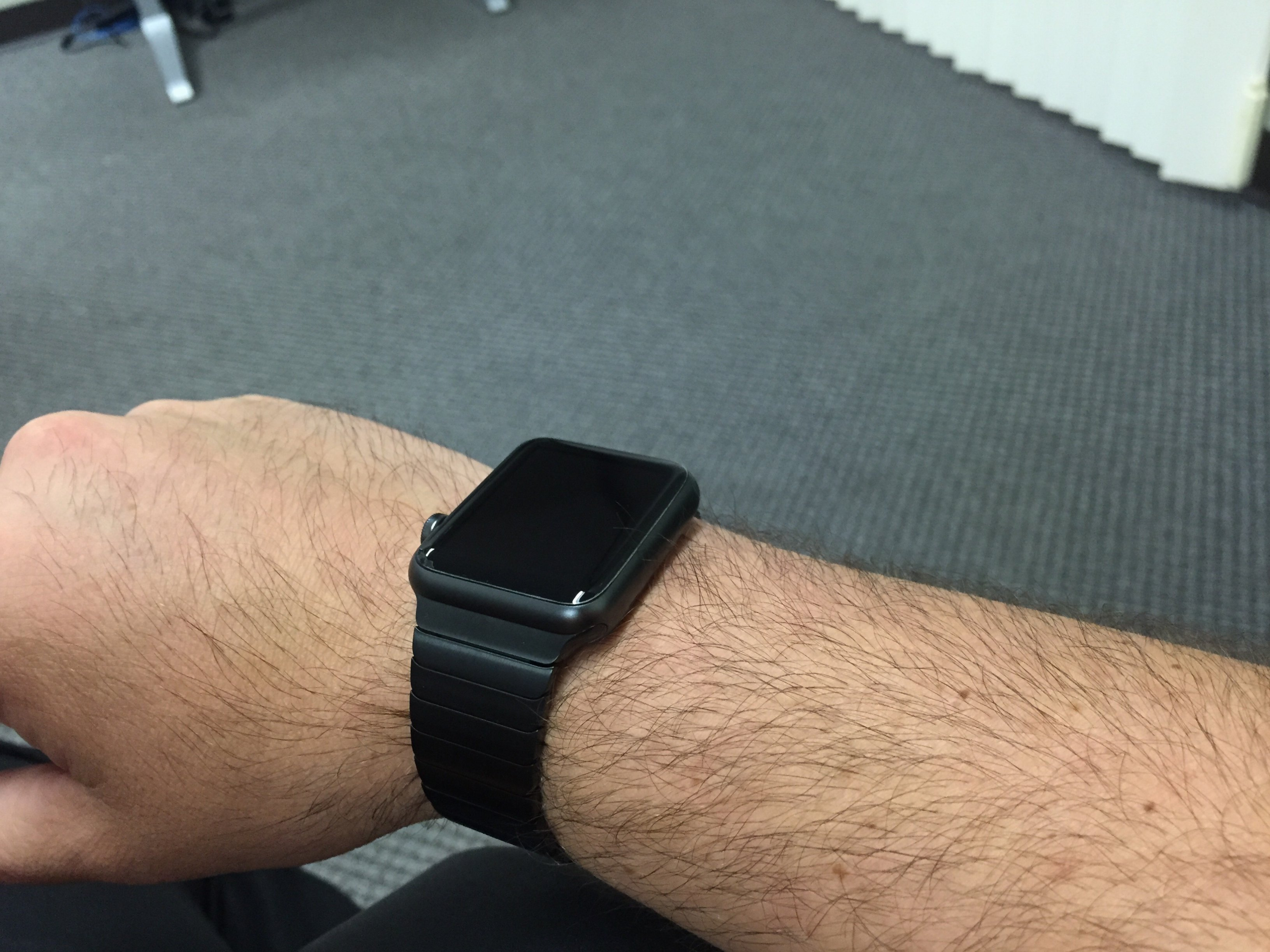 Watch marks on wrist - View Attachment 578614