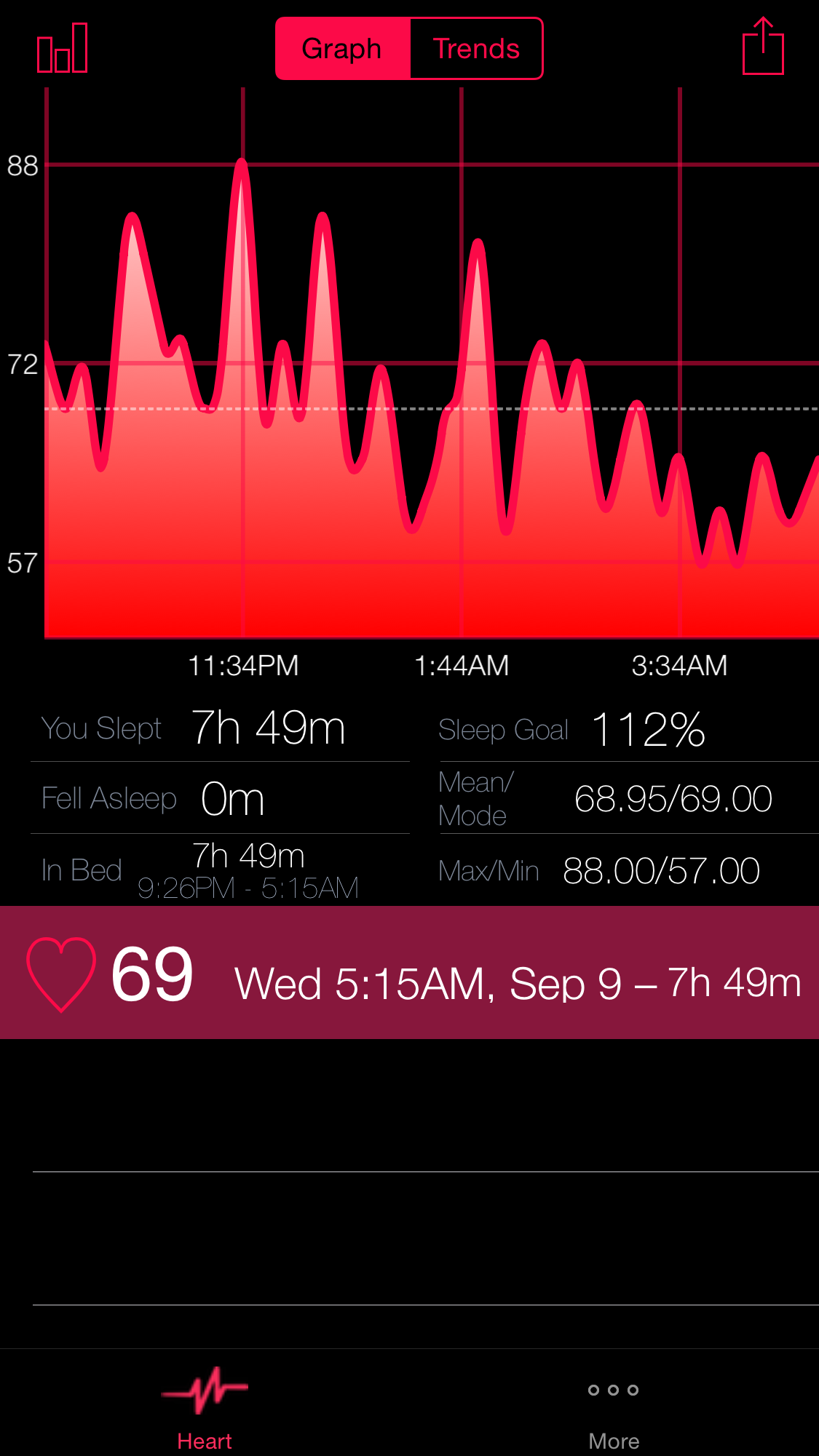World's First Sleep Tracker for Apple Watch with Motion