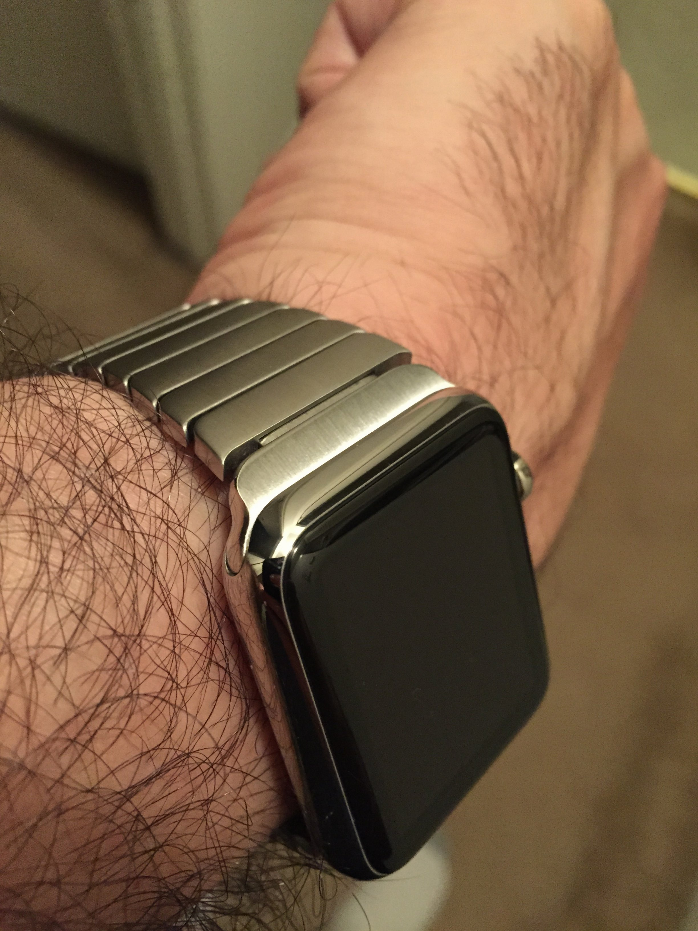 Watch marks on wrist - Img_3073 Jpeg Img_3074 Jpeg Img_3075 Jpeg